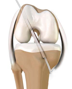 Minimally Invasive Knee Joint Replacement