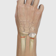 Wrist Fracture Fixation